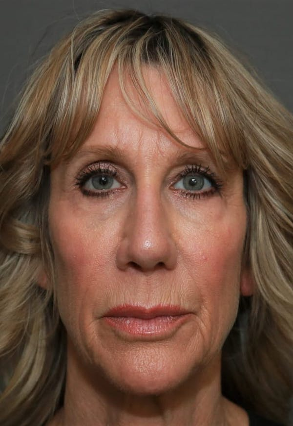 Revision Rhinoplasty Gallery - Patient 5164616 - Image 2