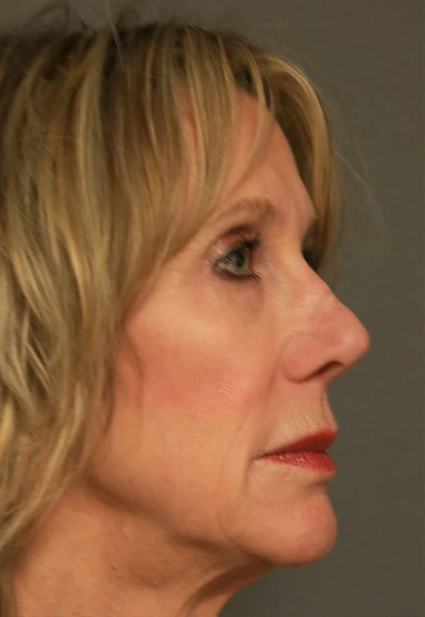Revision Rhinoplasty Gallery - Patient 5164616 - Image 3