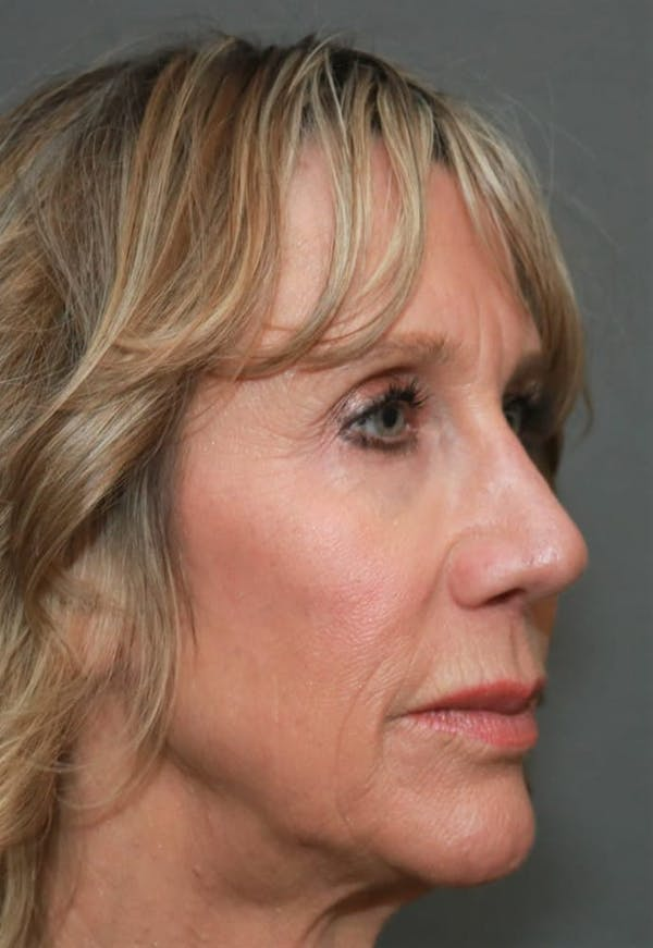 Revision Rhinoplasty Gallery - Patient 5164616 - Image 4