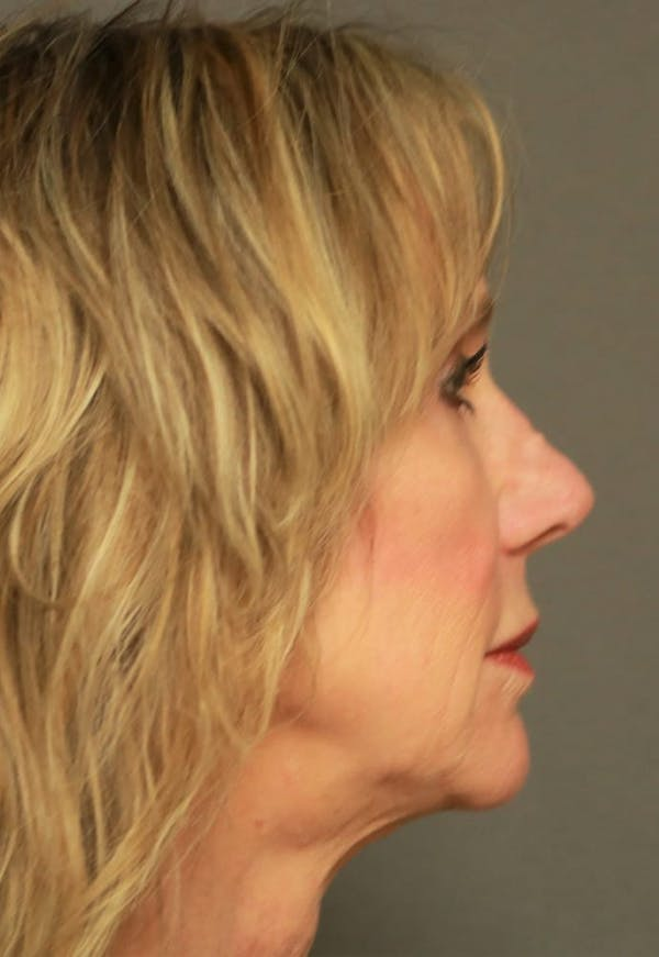 Revision Rhinoplasty Gallery - Patient 5164616 - Image 5