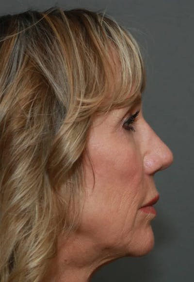 Revision Rhinoplasty Gallery - Patient 5164616 - Image 6