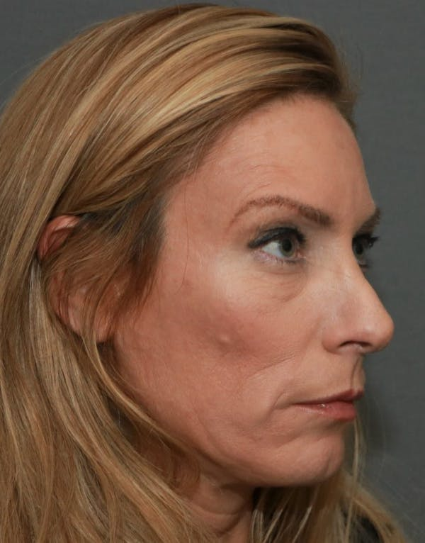 Revision Rhinoplasty Gallery - Patient 5164617 - Image 3