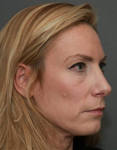 Revision Rhinoplasty Gallery - Patient 5164617 - Image 4