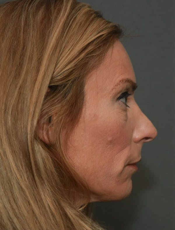 Revision Rhinoplasty Gallery - Patient 5164617 - Image 5