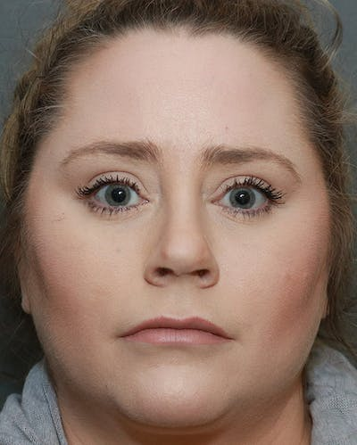 Aesthetic Rhinoplasty Gallery - Patient 5282749 - Image 2