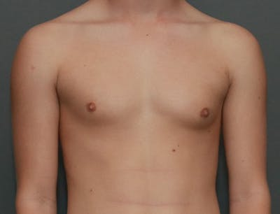 Gynecomastia Gallery - Patient 8284602 - Image 1