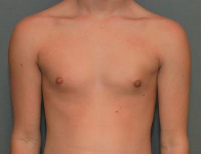 Gynecomastia Gallery - Patient 8284602 - Image 2