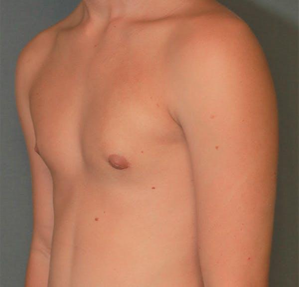 Gynecomastia Gallery - Patient 5282758 - Image 4