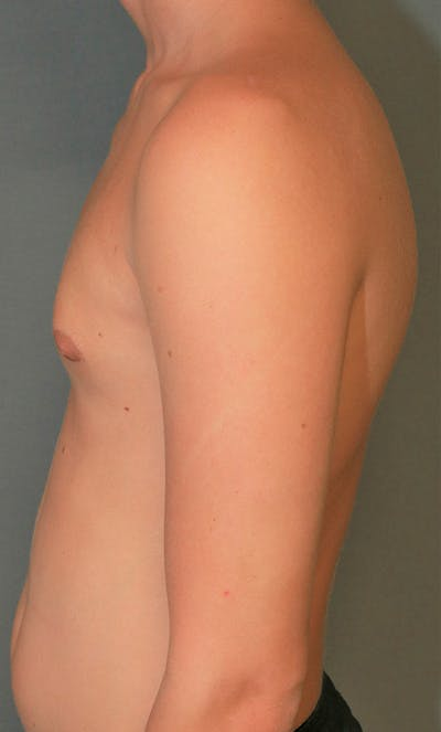 Gynecomastia Gallery - Patient 5282758 - Image 6