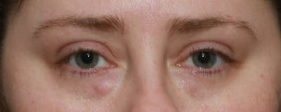 Lower Blepharoplasty Gallery - Patient 5282807 - Image 1