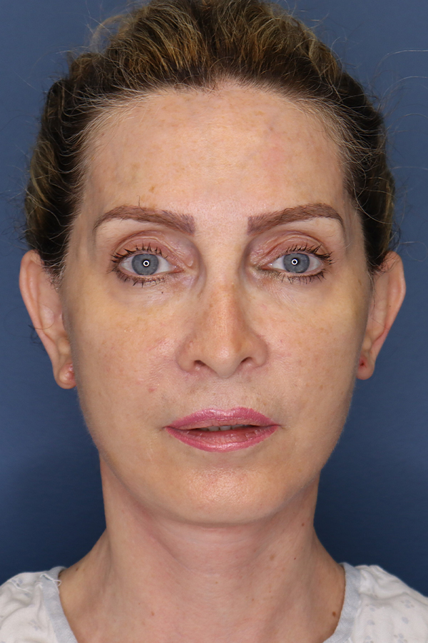 Before and After image of Facelift Orange County