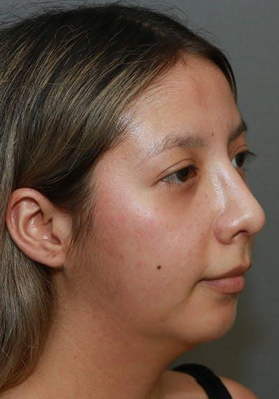 Aesthetic Rhinoplasty Gallery - Patient 5555942 - Image 4