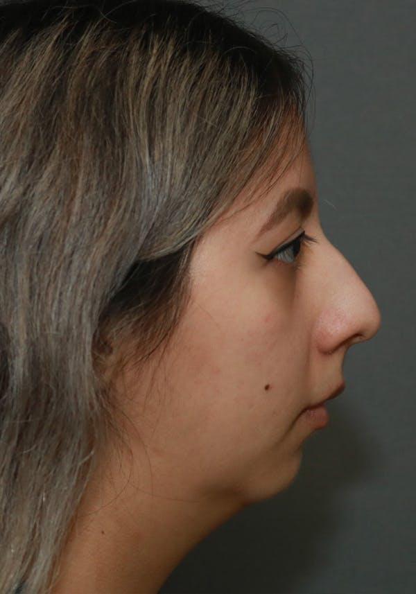 Aesthetic Rhinoplasty Gallery - Patient 5555942 - Image 5