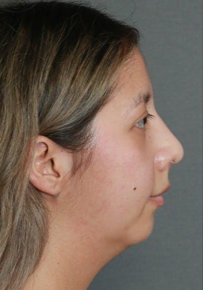 Aesthetic Rhinoplasty Gallery - Patient 5555942 - Image 6