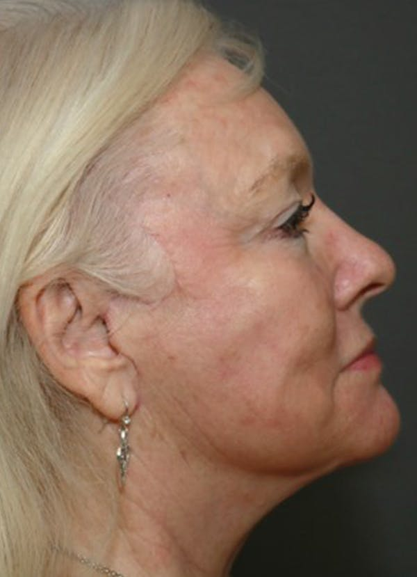Halo Skin Resurfacing Gallery - Patient 5556012 - Image 1