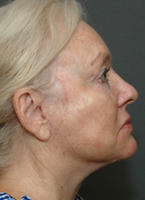 Halo Skin Resurfacing Gallery - Patient 5556012 - Image 2