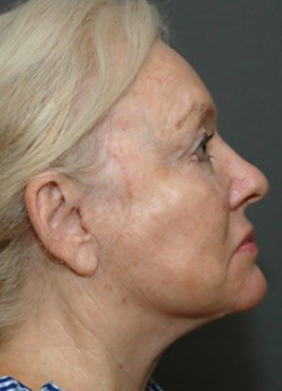 Halo Skin Resurfacing Gallery - Patient 5556012 - Image 2