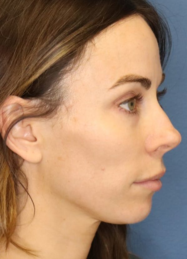 Halo Skin Resurfacing Gallery - Patient 5556013 - Image 2