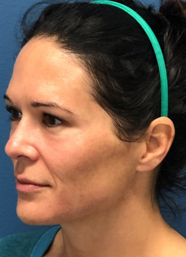 Halo Skin Resurfacing Gallery - Patient 5556014 - Image 1