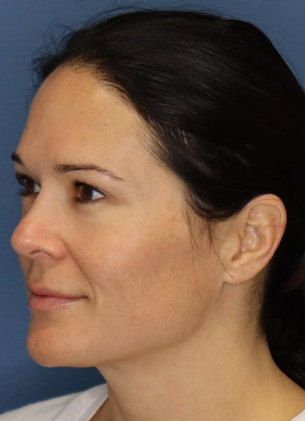 Halo Skin Resurfacing Gallery - Patient 5556014 - Image 2