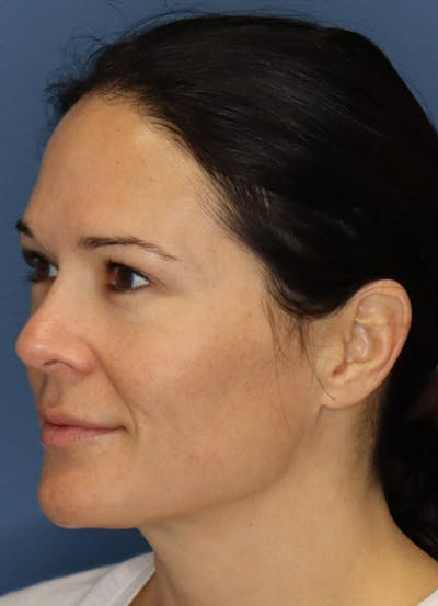 Halo Skin Resurfacing Gallery - Patient 5556014 - Image 2