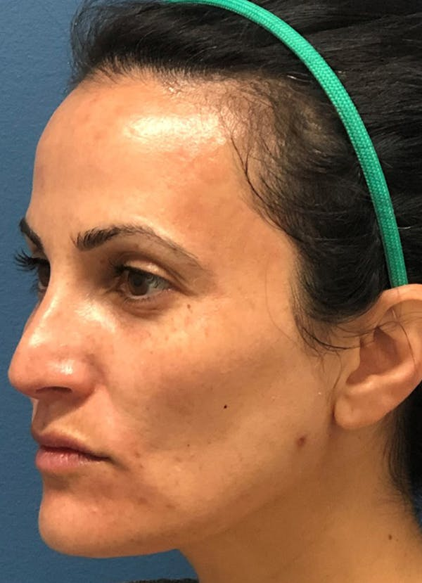Halo Skin Resurfacing Gallery - Patient 5556015 - Image 1