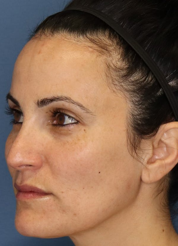 Halo Skin Resurfacing Gallery - Patient 5556015 - Image 2