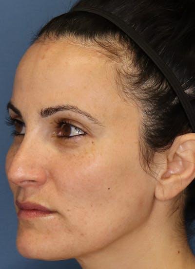 Halo Skin Resurfacing Gallery - Patient 5556015 - Image 2