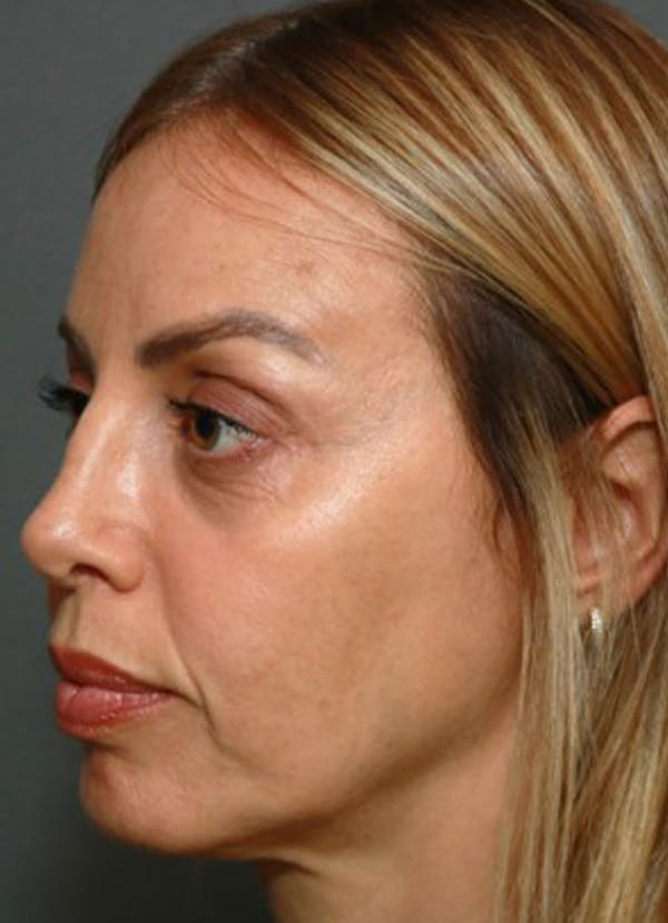 Halo Skin Resurfacing Gallery - Patient 5556016 - Image 1