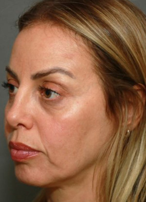 Halo Skin Resurfacing Gallery - Patient 5556016 - Image 2