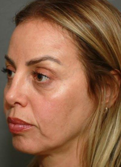 Halo Skin Resurfacing Gallery - Patient 5556016 - Image 2