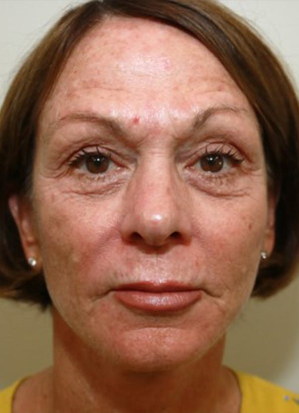Halo Skin Resurfacing Gallery - Patient 5556017 - Image 1