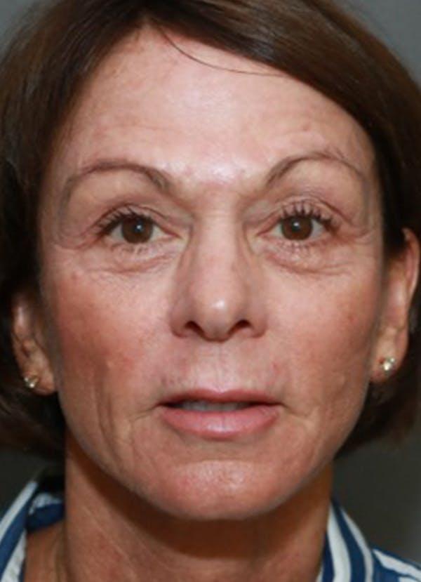 Halo Skin Resurfacing Gallery - Patient 5556017 - Image 2