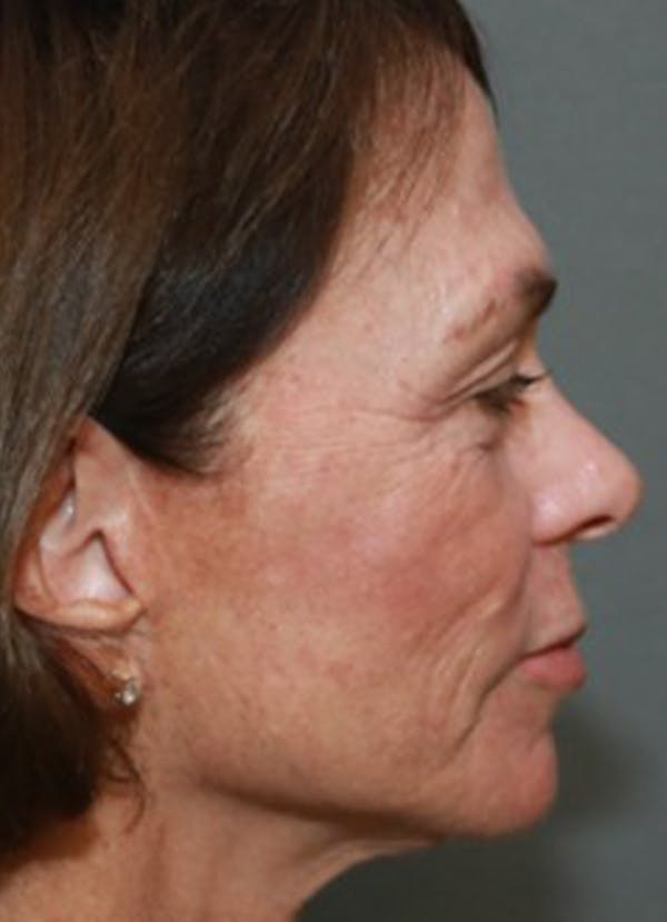 Halo Skin Resurfacing Gallery - Patient 5556018 - Image 2