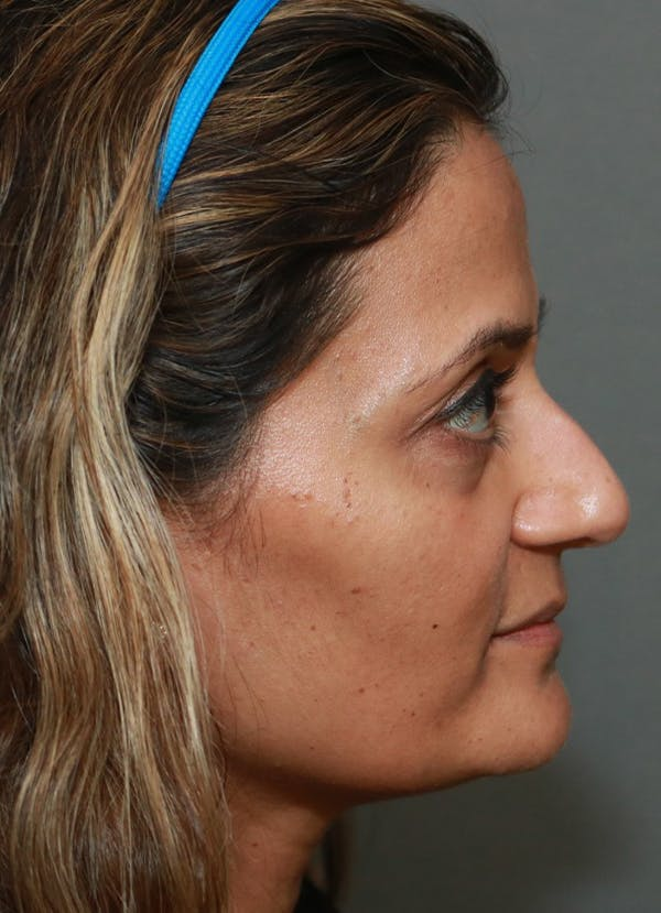 Halo Skin Resurfacing Gallery - Patient 5556020 - Image 1