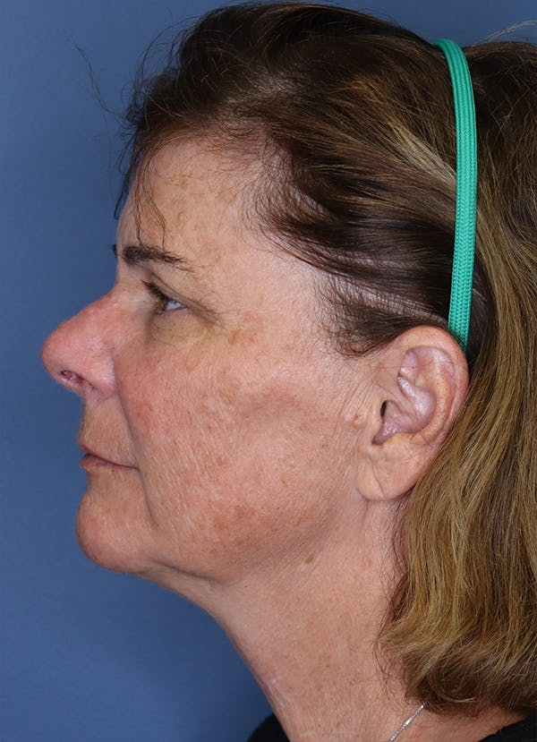 Halo Skin Resurfacing Gallery - Patient 5556021 - Image 1