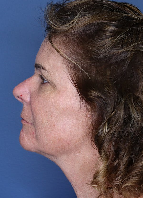 Halo Skin Resurfacing Gallery - Patient 5556021 - Image 2