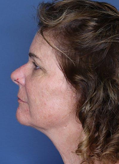 Halo Skin Resurfacing Gallery - Patient 5556021 - Image 2