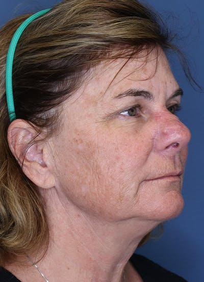 Halo Skin Resurfacing Gallery - Patient 5556022 - Image 1