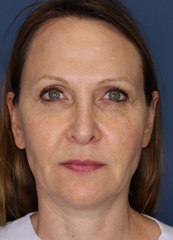 Halo Skin Resurfacing Gallery - Patient 5556023 - Image 1
