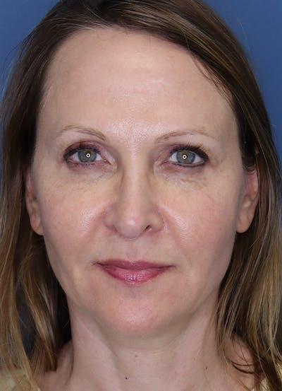 Halo Skin Resurfacing Gallery - Patient 5556023 - Image 2