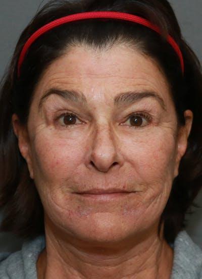 Halo Skin Resurfacing Gallery - Patient 5556024 - Image 2