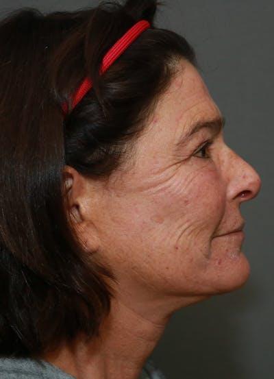 Halo Skin Resurfacing Gallery - Patient 5556024 - Image 4