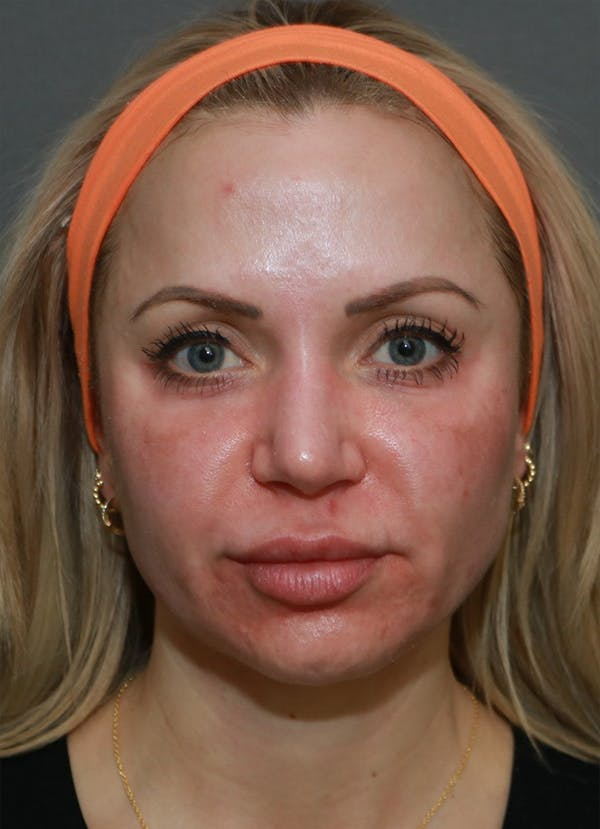 Halo Skin Resurfacing Gallery - Patient 5556025 - Image 1