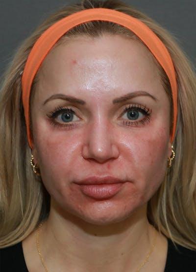 Halo Skin Resurfacing Gallery - Patient 5556025 - Image 1