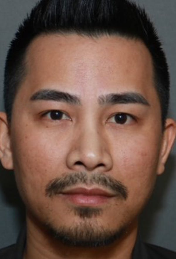 Revision Rhinoplasty Gallery - Patient 5955015 - Image 1