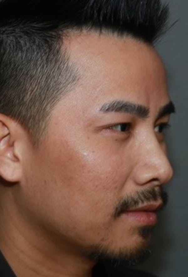 Revision Rhinoplasty Gallery - Patient 5955015 - Image 3