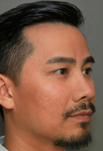 Revision Rhinoplasty Gallery - Patient 5955015 - Image 4