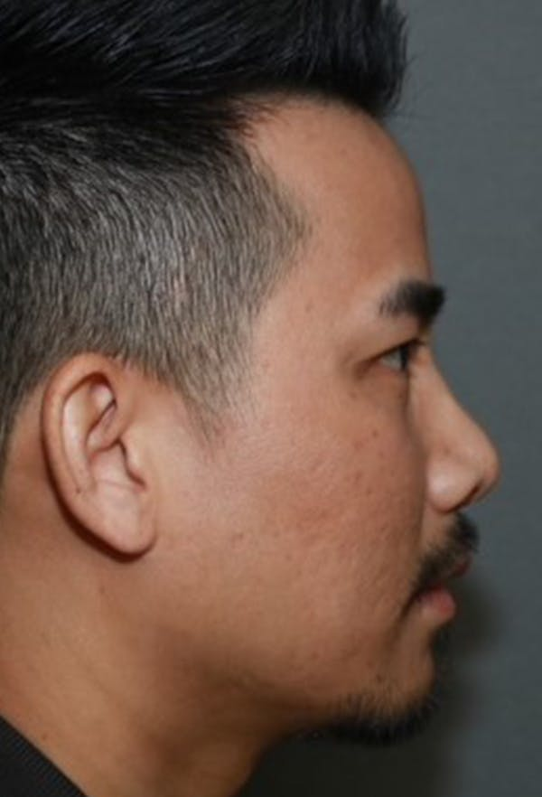 Revision Rhinoplasty Gallery - Patient 5955015 - Image 5
