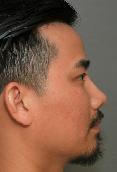 Revision Rhinoplasty Gallery - Patient 5955015 - Image 6
